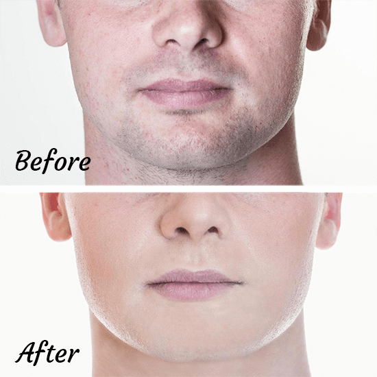 before and after beard shadow makeup