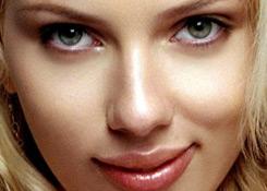 transgender facial feminization cheeks example