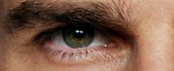 跨性別面部女性化眼睛的例子