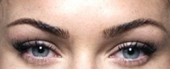 transgender facial feminization eyebrows example