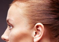transgender facial feminization forehead example