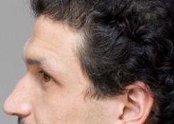 跨性別面部女性化額頭的例子