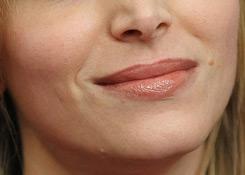 transgender facial feminization chin and jaw example