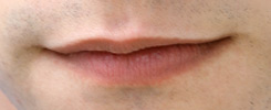 transgender facial feminization lips example