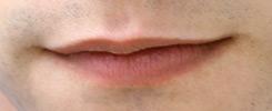 transgender facial feminization lips example